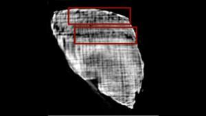 Изображение, полученное в результате рентгеновского сканирования