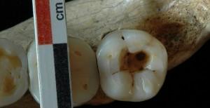 Останки зубов со следами стоматологического вмешательства.