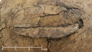 Поврежденный череп убитого в неолите